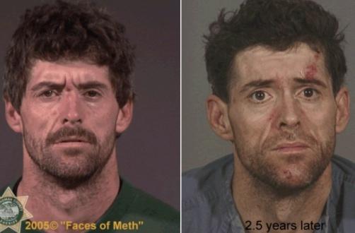 """За 2,5 года крепкий мужчина превратился в психически больного человека - портал """"ЗдравКом"""""""