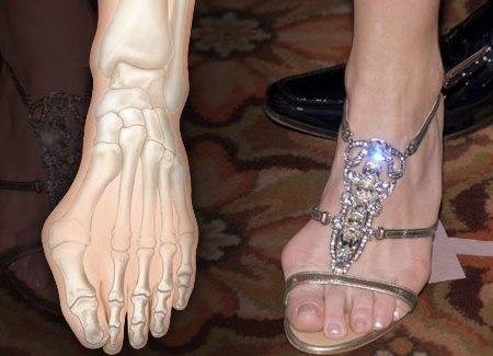 """Любители обуви с заостренными носами часто страдают от бурсита - """"ЗдравКом"""""""