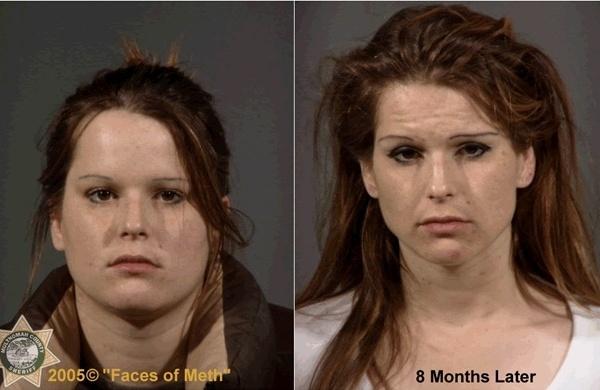 Женщины наркоманки употребляющие винт фото
