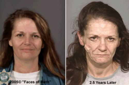 """За 2,5 года наркотиков эта женщина 30 с небольшим выглядит на 60 лет - портал """"ЗдравКом"""""""