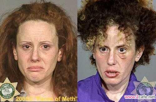 """9 месяцев на метамфетамине не прошли даром для внешности этой женщины - """"ЗдравКом"""""""