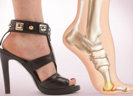 """В туфлях на высоком каблуке стопа находится в неестественном состоянии - """"ЗдравКом"""""""